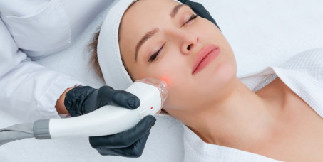 890 din za lasersku epilaciju celog lica za žene u salonu Krasiva na Novom Beogradu!