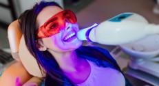 """1490 din za lasersko beljenje zuba (3 tretmana/ po 20 min) u """"Fokus Laser Centru"""" na Zvezdari!"""