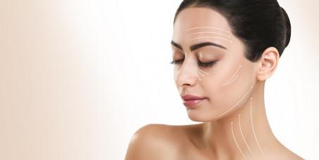 550 din za tretman miolifta- zatezanja lica u trajanju od 30 minuta -SL Beauty Zo u centru Beograda!