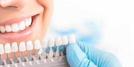 8900 din za ordinacijsko beljenje zuba obe vilice sa Zoom lampom koja aktivira Zoom gel za beljenje zuba i omogućava da se brzo vide rezultati u SO Trajić!