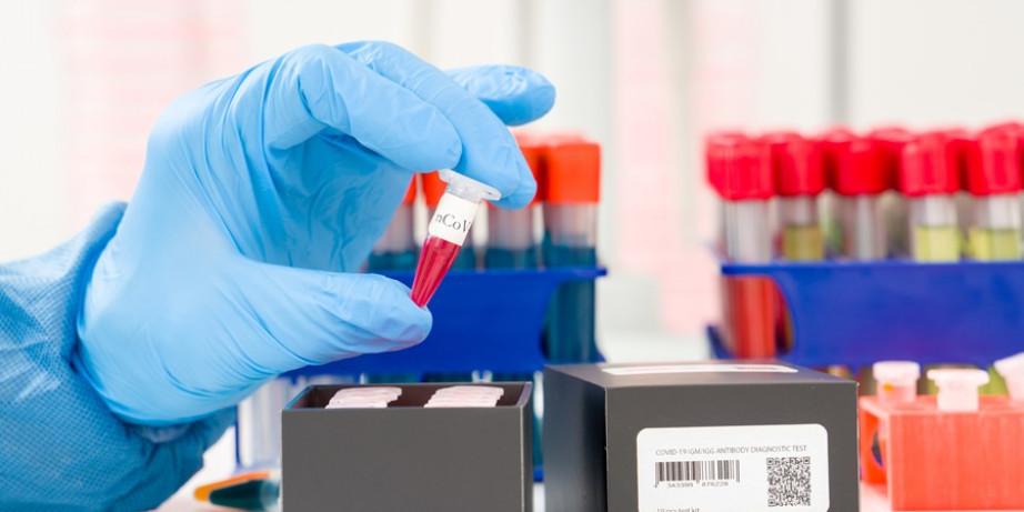 1800 din za analizu titra antitela na Spajk protein (anti S1) antitela, posle vakcinacije protiv Covid 19 -City lab-Novi Beograd!