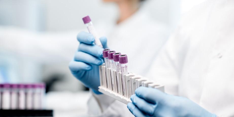 1450 din za paket analiza i briseva za dame sa tumačenjem rezultata (chlamydia, mycoplazma, ureaplazma, vaginalni bris) u Millenium Medic-u!